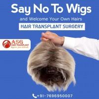 Hair Transplant in India asghairtransplant